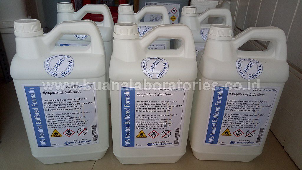 25L Neutral Buffered Formalin 10%